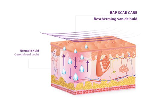 BAPSCARCARE werking siliconenverband