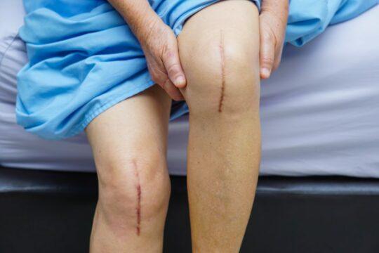 Hypertrofisch litteken