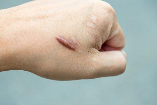 soorten littekens keloid